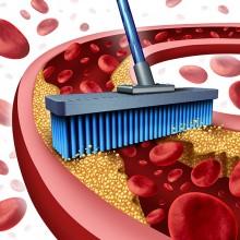 כיצד מורידים שומנים בדם ללא תרופות?