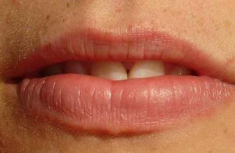 טיפולי שיניים והומאופתיה?